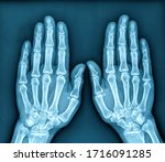 Photo Of X Ray Image Of Both...