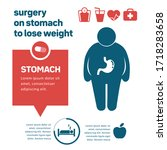 surgery on stomach to lose... | Shutterstock .eps vector #1718283658