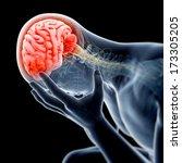 medical illustration   swollen  ...   Shutterstock . vector #173305205