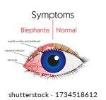 human eyes  blepharitis ... | Shutterstock .eps vector #1734518612