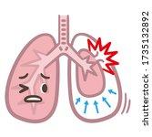 symptoms of pneumothorax lung... | Shutterstock .eps vector #1735132892