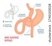 mini gastric bypass. bariatric...   Shutterstock .eps vector #1740103028