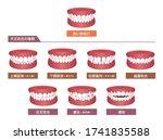 teeth trouble   bite type  ... | Shutterstock .eps vector #1741835588