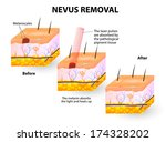 moles spots can be removed with ... | Shutterstock .eps vector #174328202