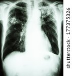 Small photo of film chest x-ray show alveolar infiltrate at left upper lung and right middle lung due to Mycobacterium tuberculosis infection (Pulmonary Tuberculosis)