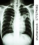 Small photo of film chest x-ray show alveolar infiltrate at left middle lung due to Mycobacterium tuberculosis infection (Pulmonary Tuberculosis)