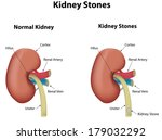 kidney stones | Shutterstock .eps vector #179032292