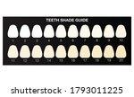 Teeth Whitening Shade Guide ...