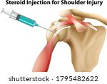 steroid injection for shoulder... | Shutterstock .eps vector #1795482622