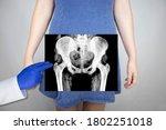 X Ray Of The Pelvic Bones Of A...