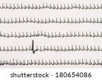 extrasystole on... | Shutterstock . vector #180654086