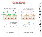 graves' disease. autoimmune... | Shutterstock .eps vector #1807069975