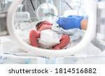 Small photo of Photo of a premature baby in incubator. Focus is on his feet. Nurse in blue gloves is using the feeding tube for feeding premature baby. Neonatal intensive care unit