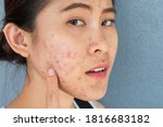 Small photo of Portrait of ugly Asian woman having problems of acne inflammation (Papule and Pustule) on her face. Conceptual of problems on woman skin.