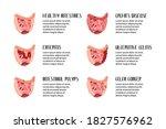 intestines diseases. enteritis  ... | Shutterstock .eps vector #1827576962