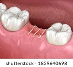 Stitches In Gum After Tooth...
