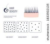 Hair Density Types...