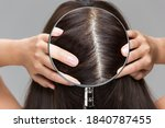 Enlarge A Woman's Scalp With A...