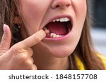 Young Woman Without Tooth On...