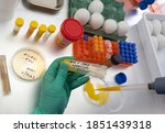 Scientific sampling of eggs in poor condition, analysis of avian influenza in humans, conceptual image