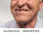The Toothless Smile Of An Old...