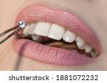 Dentist doctor select a gem or...