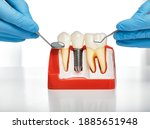 Small photo of Dental prosthetics concept. Showing the installation of a dental implant on the anatomical model of teeth, close-up