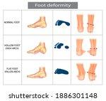 Foot Deformation. Types...