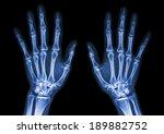 Film X Ray Both Hand Ap   Show...