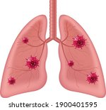 lungs human internal organ with ... | Shutterstock .eps vector #1900401595
