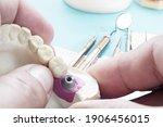 Closeup. Implant Prosthodontics ...