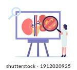 pyelonephritis  kidney... | Shutterstock .eps vector #1912020925