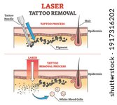 laser tattoo removal process... | Shutterstock .eps vector #1917316202