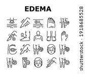 edema disease symptom... | Shutterstock .eps vector #1918685528