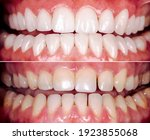 Small photo of Perfect smile before and after bleaching procedure whitening of zircon arch ceramic prothesis Implants crowns. Dental restoration treatment clinic patient. Result of oral surgery dentistry