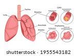 copd  chronic obstructive...   Shutterstock .eps vector #1955543182