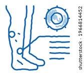 Rash Dermatitis On Legs Sketch...