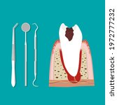 dental instruments and tooth.... | Shutterstock .eps vector #1972777232