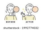 illustration of skin with... | Shutterstock .eps vector #1992774032