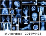 Collection X Ray Multiple Part...