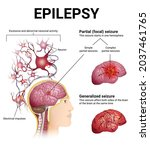 neurological disorders ... | Shutterstock .eps vector #2037461765