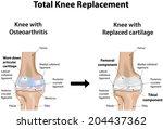 total knee replacement | Shutterstock .eps vector #204437362