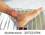 chronic wound at leg.   Shutterstock . vector #207221596