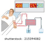 how blood dialysis works ... | Shutterstock .eps vector #215394082