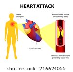 anatomy of a heart attack.... | Shutterstock .eps vector #216624055