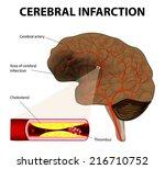 brain stroke. cerebral...   Shutterstock .eps vector #216710752