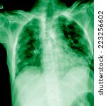 Small photo of film chest x-ray show alveolar infiltrate and fibrosis at lungs due to Mycobacterium tuberculosis infection (Pulmonary Tuberculosis)
