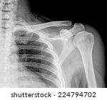 x ray of left human shoulder... | Shutterstock . vector #224794702
