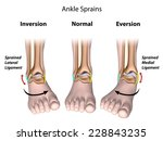 types of ankle sprains | Shutterstock . vector #228843235