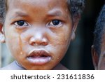 Crying Girl With Tear On Cheek...
